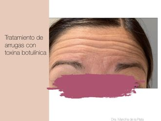 Medicina estética-643954