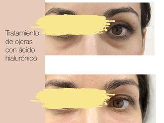 Medicina estética-643956