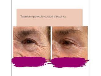 Medicina estética-740624