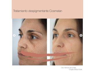 Rejuvenecimiento facial-740627
