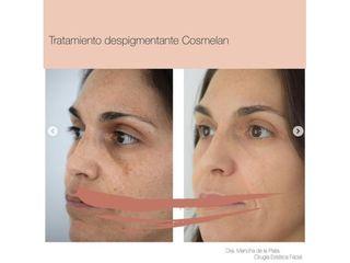 Tratamiento despigmentante - Dra. Maria Mancha de la Plata