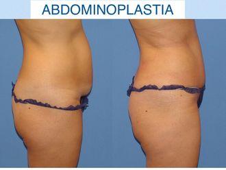 Abdominoplastia - 635280