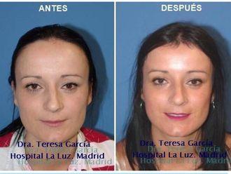 Cirugía reconstructiva - 635500