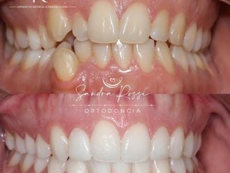 Blanqueamiento dental-741628