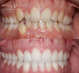 Blanqueamiento dental - Clínica Rossi Lemarie