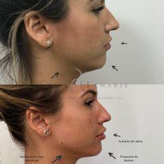 Ácido hialurónico - Clínica Rossi Lemarie