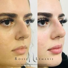Aumento de labios - Clínica Rossi Lemarie