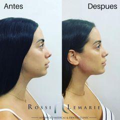 Demarcación mandibular + Proyección de Mentón + reducción de papada.