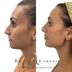 Rinomodelación - Clínica Rossi Lemarie