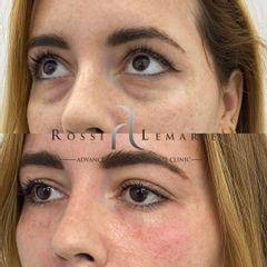 Eliminación de ojeras - Clínica Rossi Lemarie