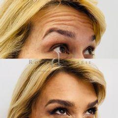 Bótox - Clínica Rossi Lemarie