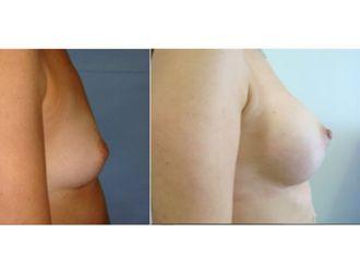 Cirugía estética-500744