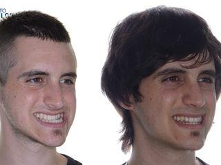 Antes y después Cirugía ortognática bimaxilar