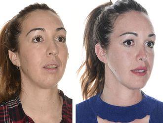 Cirugía maxilofacial-624473