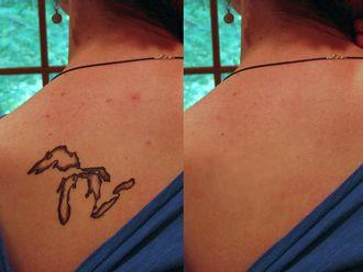 Eliminación de tatuajes - 573752
