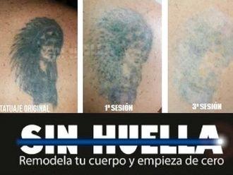 Eliminación de tatuajes - 588874