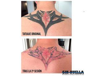Eliminación de tatuajes - 589959