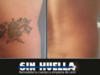 Eliminación de tatuajes - 596361