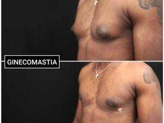 Ginecomastia - 646296
