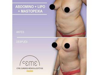 Cirugía estética-702142