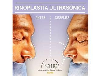 Rinoplastia - 702146