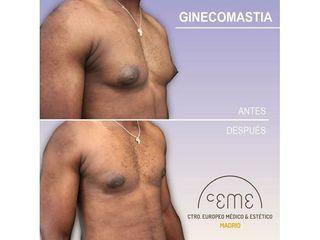 Antes y después Ginecomastia - Centro CEME