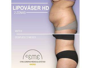 Antes y después Lipo vaser - Centro CEME