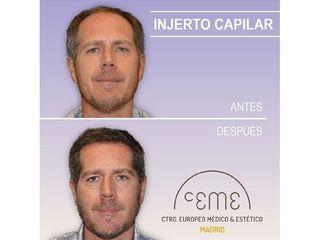 Antes y después Injerto capilar - Centro CEME