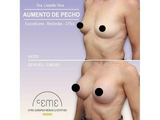 Antes y después Aumento de pecho - Centro CEME