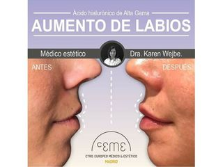 Antes y después Aumento de labios - Centro CEME