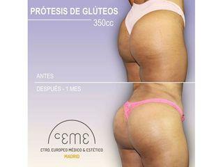 Antes y después Aumento de glúteos - Centro CEME