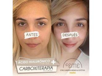 Medicina estética-702158