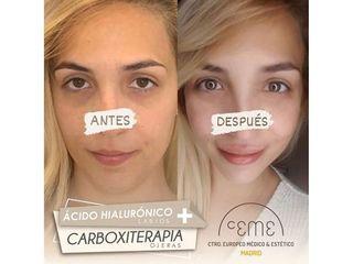 Antes y después Ácido hialurónico - Centro CEME