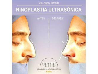 Rinoplastia-702159