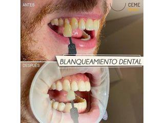 Antes y después Blanqueamiento dental - Centro CEME