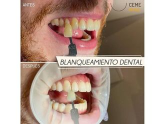 Blanqueamiento dental-702160