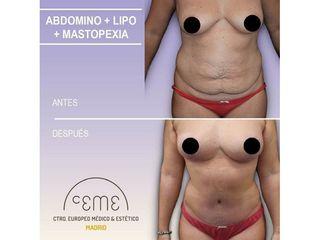 Antes y después Abdominoplastia - Centro CEME
