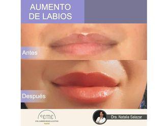 Medicina estética-702165