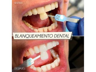 Blanqueamiento dental-702166