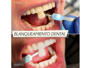 Blanqueamiento dental - Centro CEME