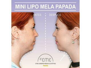 Antes y después Liposucción de papada - Centro CEME