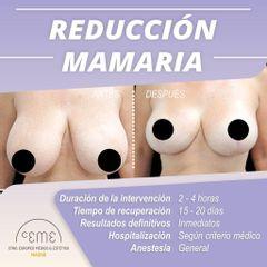 Reducción de senos - Centro CEME