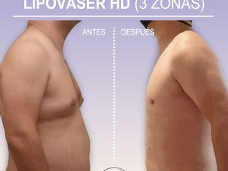 Lipo Vaser - 789729