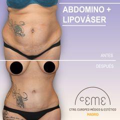 Abdominoplastia - Centro CEME