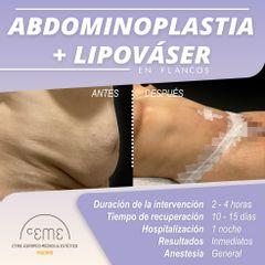Abdominoplastia + Lipo Váser - Centro CEME