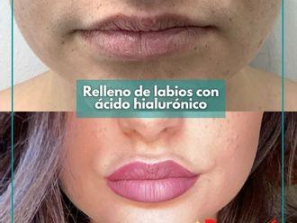 Aumento labios - 794326