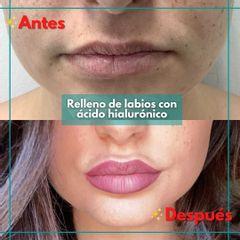 Relleno de labios - Clínica de la Cuesta CDC