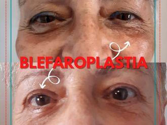 Blefaroplastia - 799715