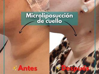 Liposucción - 799717