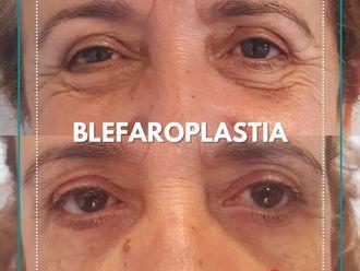 Blefaroplastia - 799718